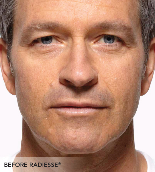 Facelift Radiesse I Woodruff Institute for Cosmetic Surgery