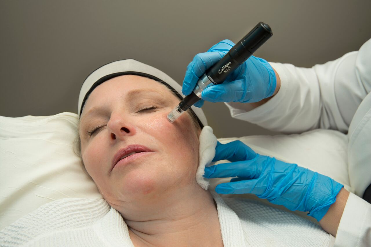 Microneedling Collagen Pin Dermatology Woodruff Institute