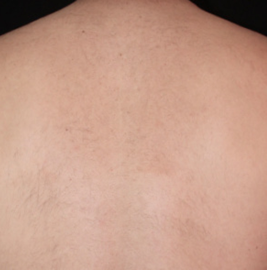 xeo hair removal a2