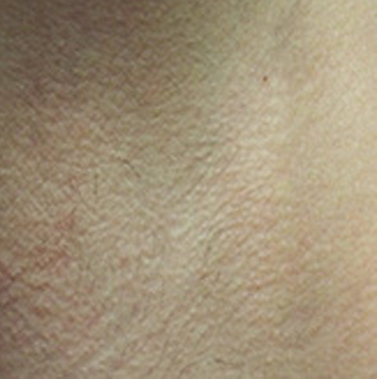 xeo hair removal a4