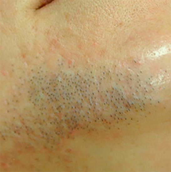xeo hair removal b