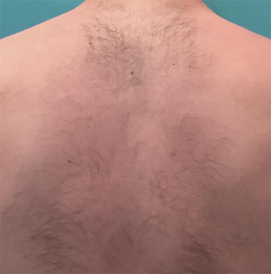 xeo hair removal b2