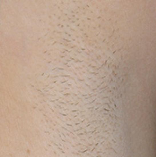 xeo hair removal b3
