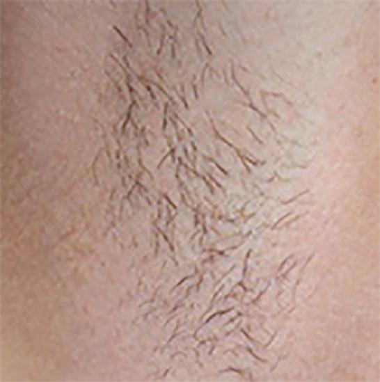 xeo hair removal b4