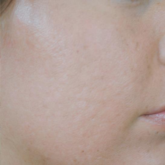 xeo skin resurface a