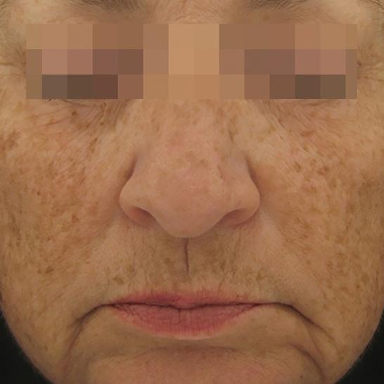 xeo skin resurface b2