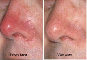 Rosacea-Before-After